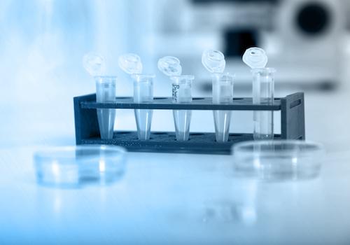 Small specimen bottles